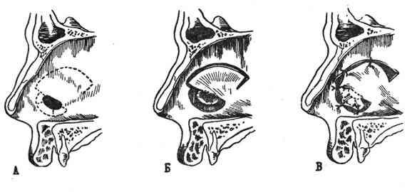 Ринопластика носа до и после фото мужчины